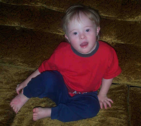 A young child with Down Syndrome