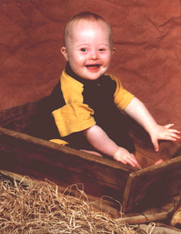 Jacob, with Down Syndrome, aged 1 year, close up, with a big potential future ahead of him.