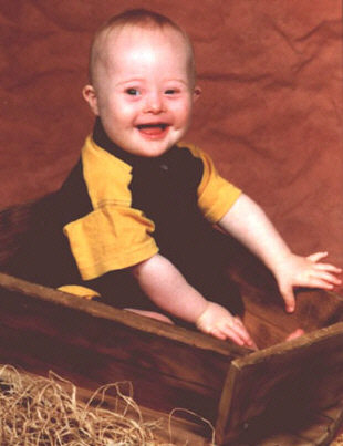 Jacob, a Down Syndrome kid, aged 1 year.