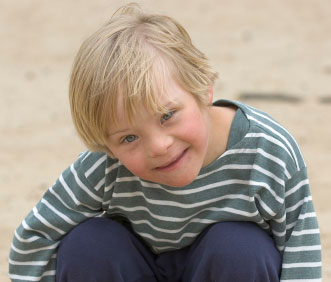 Same boy with Down syndrome from different angle and expression