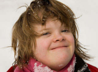 Closeup of face of older girl with Down syndrome