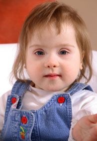 toddler girl with Down syndrome