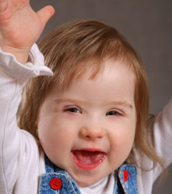 Girl toddler with Downs syndrome