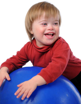 Infant with Downs syndrome