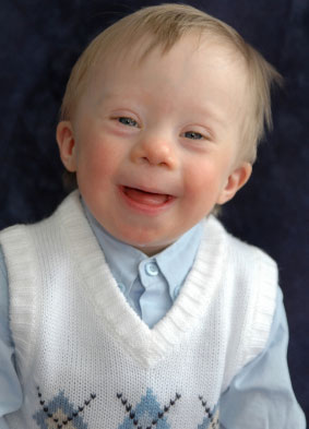Young boy with Downs syndrom