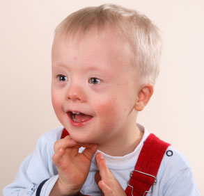 Young male child with Down's syndrome / trisonomy 21