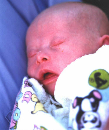Jacob with Down Syndrome as a new born infant.